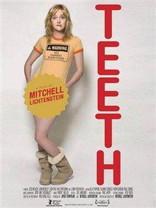 Teeth Photo 1 - Large